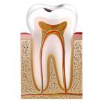 Vier Faktoren sind für die Entstehung von Karies verantwortlich: kariesverursachende Bakterien, Zahnbelag (mangelnde Mundhygiene), Nahrung (besonders Zucker) und Zeit. Beim Abbau von Kohlenhydraten durch Bakterien in dem Zahnbelag entstehen Säuren, durch die einzelne Mineralien der Schmelzschicht langsam herausgelöst werden. Man spricht hierbei von Entkalkung.