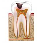 Dentinkaries