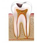 Tiefer Zahnkaries